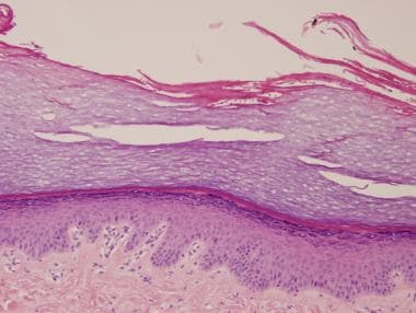 Tinea nigra, showing hyperkeratosis and mild acant