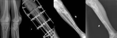 Type VI tibial plateau fracture with severe soft t