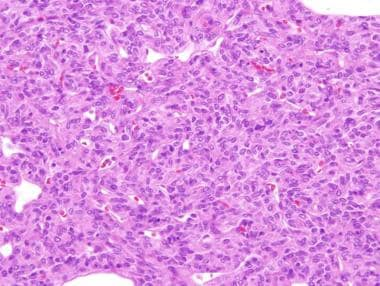 Histology of solitary fibrous tumor demonstrates a
