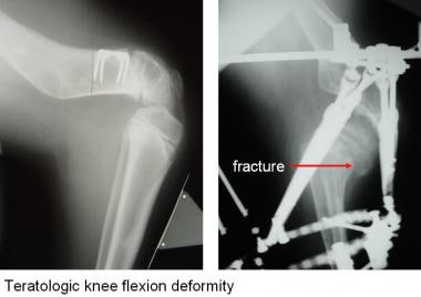 This girl born with a teratologic knee flexion def