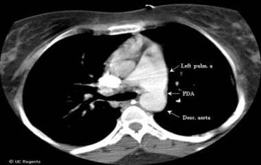 This computed tomography (CT) chest scan shows a l