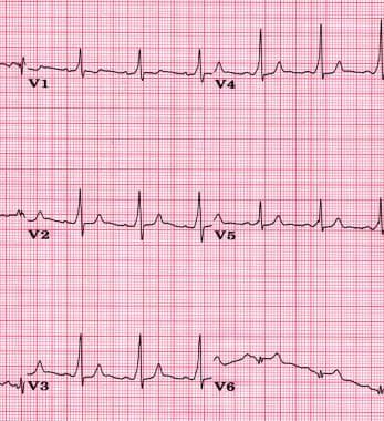 ECG demonstrating ventricular preexcitation. A del