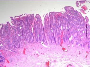 Inflammatory bowel disease. Low-power image of a c