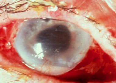 Severe endophthalmitis. Courtesy of Ron Afshari Ad