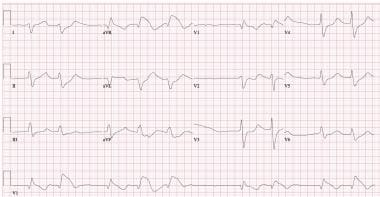 ECG in a patient who ingested 4 of flecainide. QRS