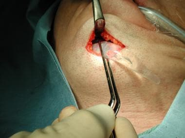 Placing implant through a submental incision.