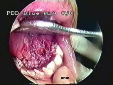 Floor of mouth, as seen after bilateral submandibu