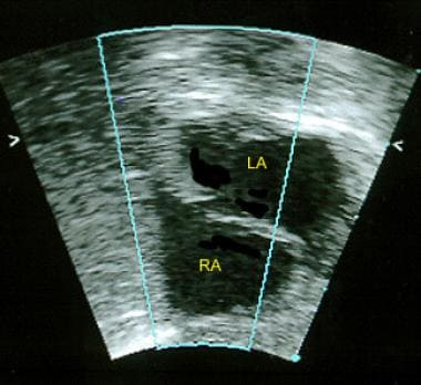 This 2-dimensional echocardiogram in an infant (su