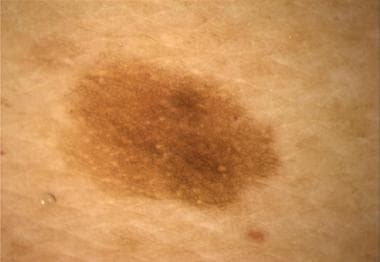 Brown pigment network in a melanocytic nevus.
