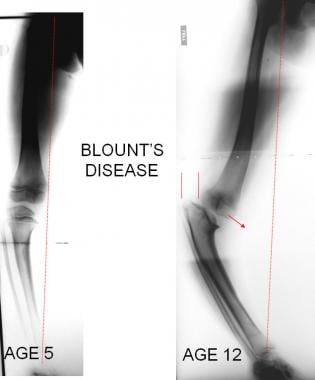 Tibia vara (Blount disease) is growth disturbance