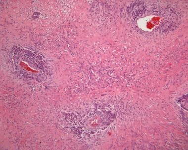 Image 27: In this solitary fibrous tumor, there ar