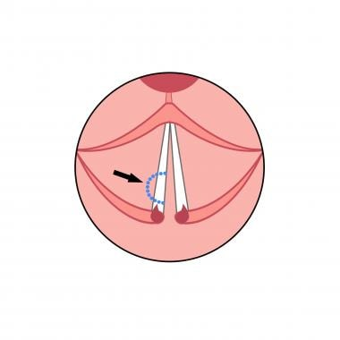 Diagram showing the incision line (blue dotted lin