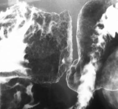 Sprue. Spot radiograph from an air-contrast upper