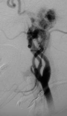 Glomus jugulare tumor. Lateral angiogram demonstra