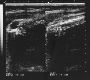 Antenatal ultrasonogram shows a lumbar meningocele