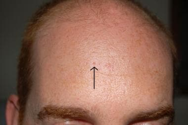 Dilated pore of Winer on forehead.