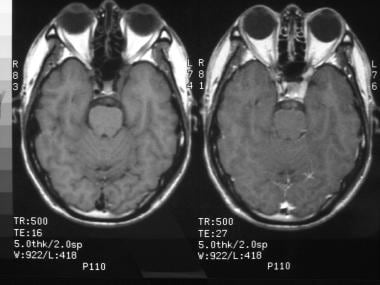 MRI of a 40-year-old man with severe periorbital p