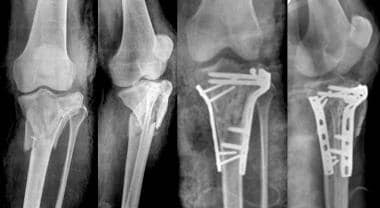 High-energy type VI tibial plateau fracture treate