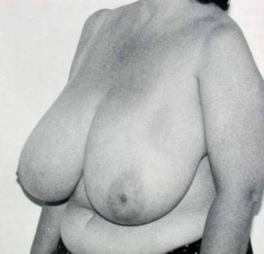 Preoperative status of breasts, oblique view. Imag