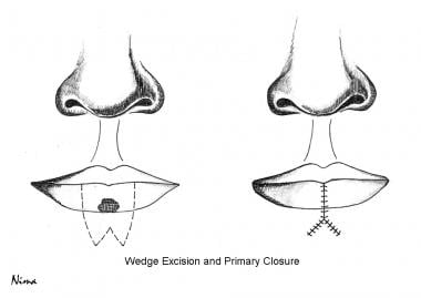 Wedge excision and primary closure.