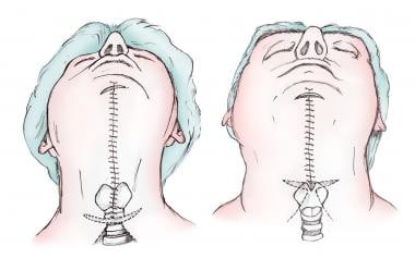 Platysma plication in female and male patient.
