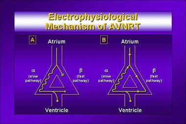 Electrophysiologic mechanism of atrioventricular n