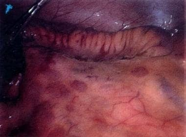 Laparoscopic view depicts creeping fat along the m