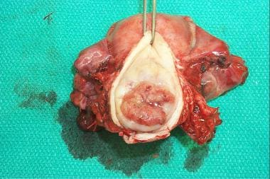 Radical hysterectomy specimen demonstrating the va