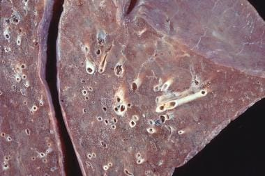 Close-up view of gross pathology on patient who di