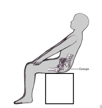 Coccyx pain (coccydynia, or tailbone pain) is typi