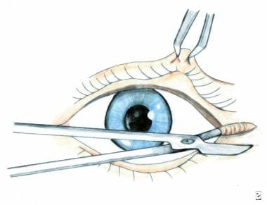 Lateral canthotomy is performed by incising latera