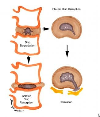 Degenerative lumbar disc disease in the mature ath