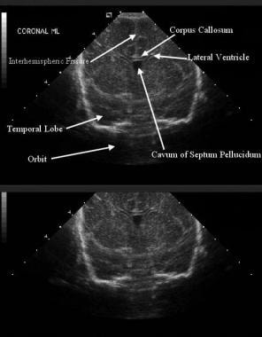 Coronal midline ultrasonographic appearance of a n