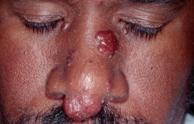 Lupus pernio with nodules on the nasal tip and sid