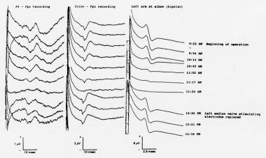 Somatosensory evoked potentials (SEPs) recorded du