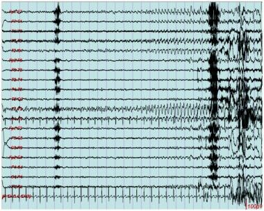 EEG seizure, left temporal region. This is charact