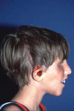 Same patient with Treacher Collins syndrome. Posto