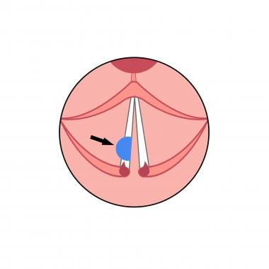 Diagram showing the result of right posterior cord
