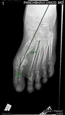 Hallux Valgus Osteotomy Technique: Approach Considerations