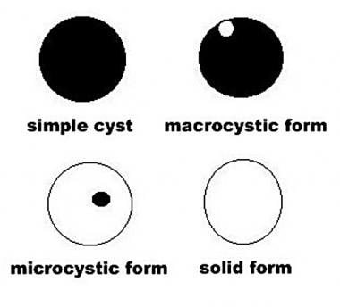 Diagram illustrates the cystic forms.