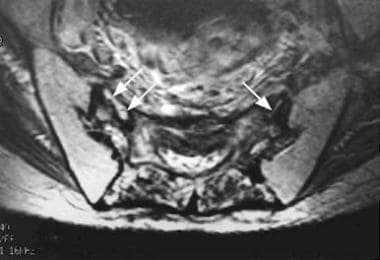 Axial T2-weighted MRI of the sacrum demonstrates l