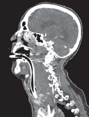 Sagittal image from a contrasted computed tomograp