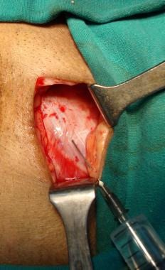 Open inguinal hernia repair. External oblique apon