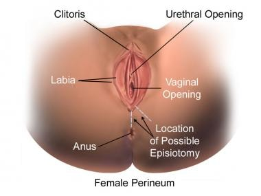 Episiotomy and Repair: Background, Indications, Contraindications
