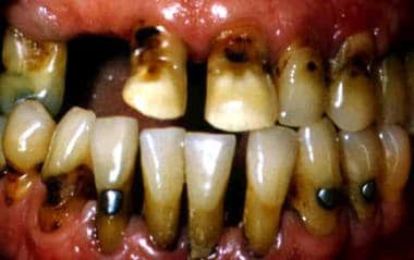 Root surface caries, severe periodontitis, and ama