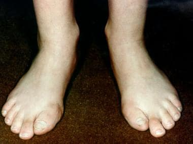 Typical hallus valgus deformity.