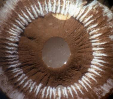 Postmortem appearances in an eye with an iris claw