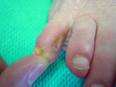 Fifth-toe deformities. This image and image below