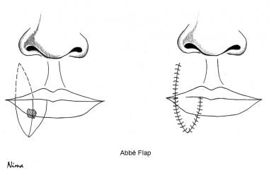 Abbe flap technique.