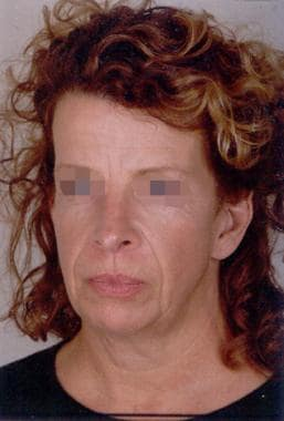Facelift, skin only. Preoperative frontal view of